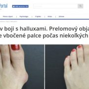 Pozor: podvodné stránky predávajú Hallupro na vybočený palec