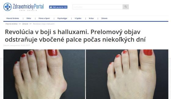 Hallux a vybočený palec