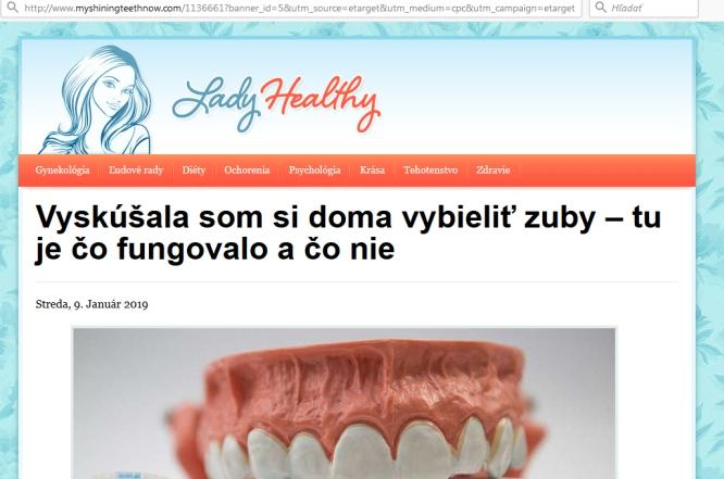 Zuby bielenie